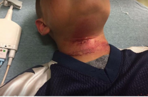 Attempted Lynching of 8 Year Old Boy in New Hampshire: We Cannot Allow this White Supremacist Violence to Normalize
